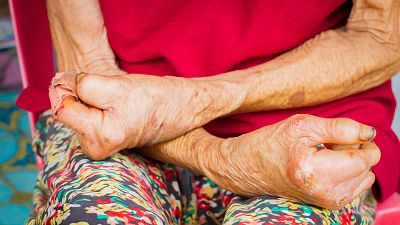 A su salud - Día Mundial de la Lepra - 29/01/16 - Escuchar ahora