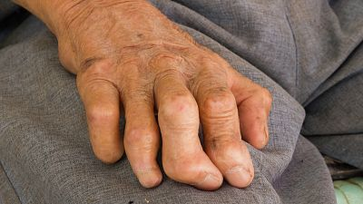 Entre par�ntesis - Lepra, una de las cuatro primeras causas de discapacidad en el mundo - Escuchar ahora