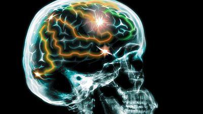 InquietaMENTE - Demencia frontotemporal - Escuchar ahora