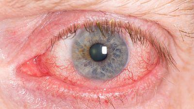 A su salud - Campaña glaucoma - 29/04/16 - Escuchar ahora