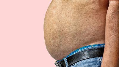 A su salud - Sobrepeso y obesidad en España - 27/07/16 - Escuchar ahora