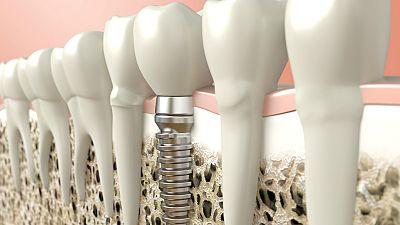 A su salud - Implantes dentales tambi�n en diab�ticos - 29/07/16 - Escuchar ahora