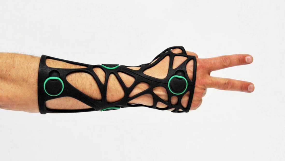 Marca España - Xkelet Easylive es la 'startup' catalana que sustituye escayolas tradicionales por férulas impresas en 3D - 12/09/16 - escuchar ahora