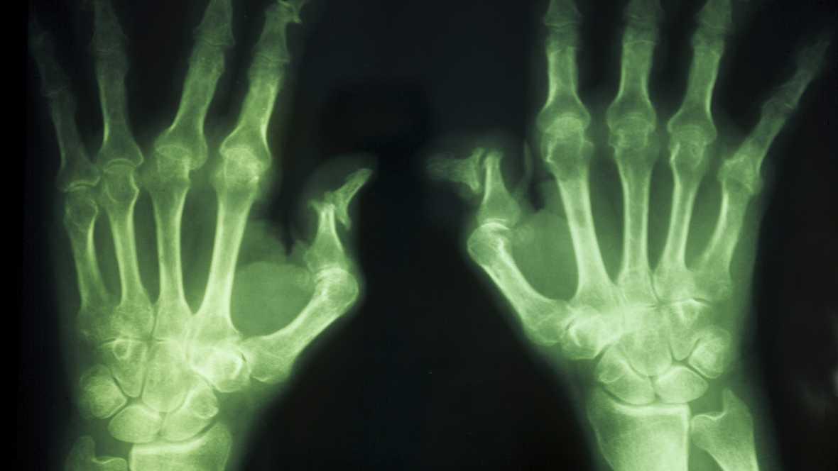 A su salud - Día Nacional de la Artritis Reumatoide - 30/09/16 - Escuchar ahora