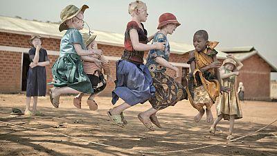 Memoria de delfín - Albinos: la vida lejos del sol - 12/06/17 - escuchar ahora