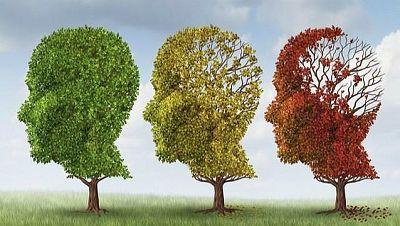 El laboratorio de JAL - Detectar el Alzheimer antes de su aparición - 26/06/17 - Escuchar ahora