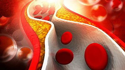 A su salud - Arteriosclerosis - 04/08/17 - Escuchar ahora