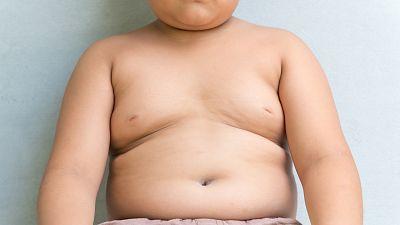 A su salud - Obesidad infantil: el papel de los padres - 16/08/17 - Escuchar ahora
