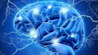Secretos del cerebro - El exceso de conexiones causa enfermedades mentales - 15/11/17 - Escuchar ahora