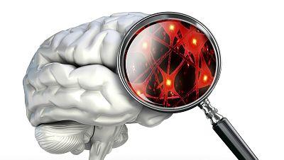 Miofisio - Ictus, cinco alarmas que pueden salvar vidas - 16/11/17 - Escuchar ahora
