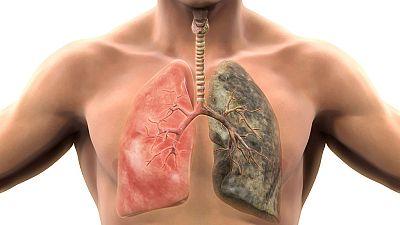 Entre paréntesis - El tabaco, principal reponsable del cáncer de pulmón - Escuchar ahora