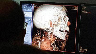 Esto me suena. Las tardes del Ciudadano García - Identificados en momias egipcias los casos de cáncer más antiguos - Escuchar ahora