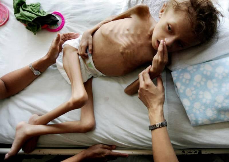 El niños de nueve años Jason López descansa en la cama del hospital Catarino Rivas, en Honduras, con riesgo serio de malnutrición.