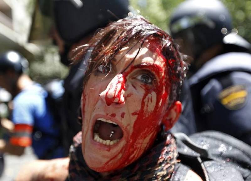 Manifestante herida por la Policía
