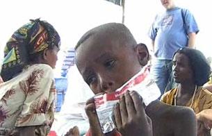20 millones de niños padecen desnutrición