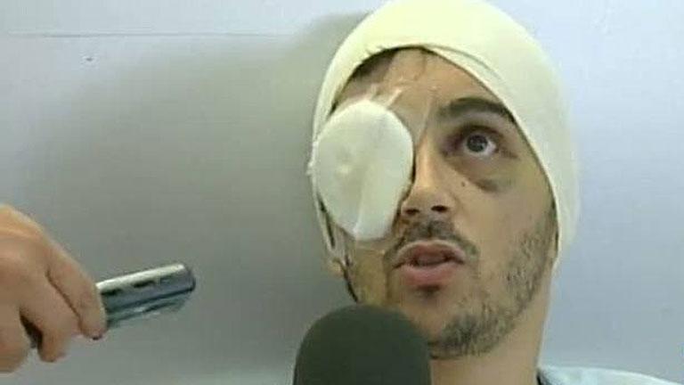 La Audiencia de Barcelona ordena reabrir el caso de un joven que perdió el ojo por una pelota de goma