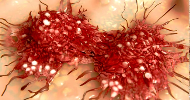 Una célula de cáncer dividiéndose.