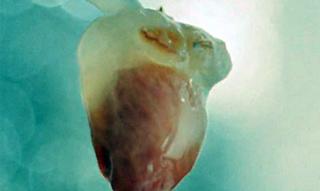 tres14 - células madre - avance