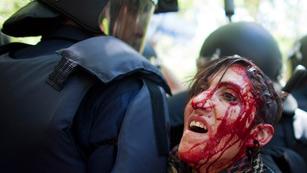 Al menos 76 heridos y cinco detenidos en la carga policial contra la manifestación minera de Madrid
