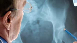 Saber vivir - Cómo tener los huesos fuertes (09/02/12)