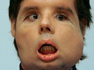 Dado de alta el primer trasplantado total de cara en el mundo