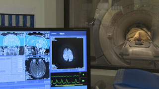 Un método que permitirá diagnosticar alzhéimer con un análisis de sangre