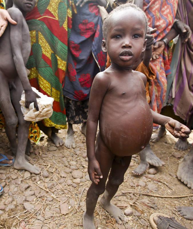 Los efectos de las sequías provocadas por El Niño pueden ser devastadores para la población infantil de ciertos países africanos.