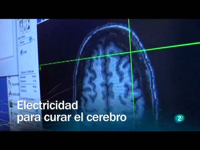 Redes - Electricidad para curar el cerebro