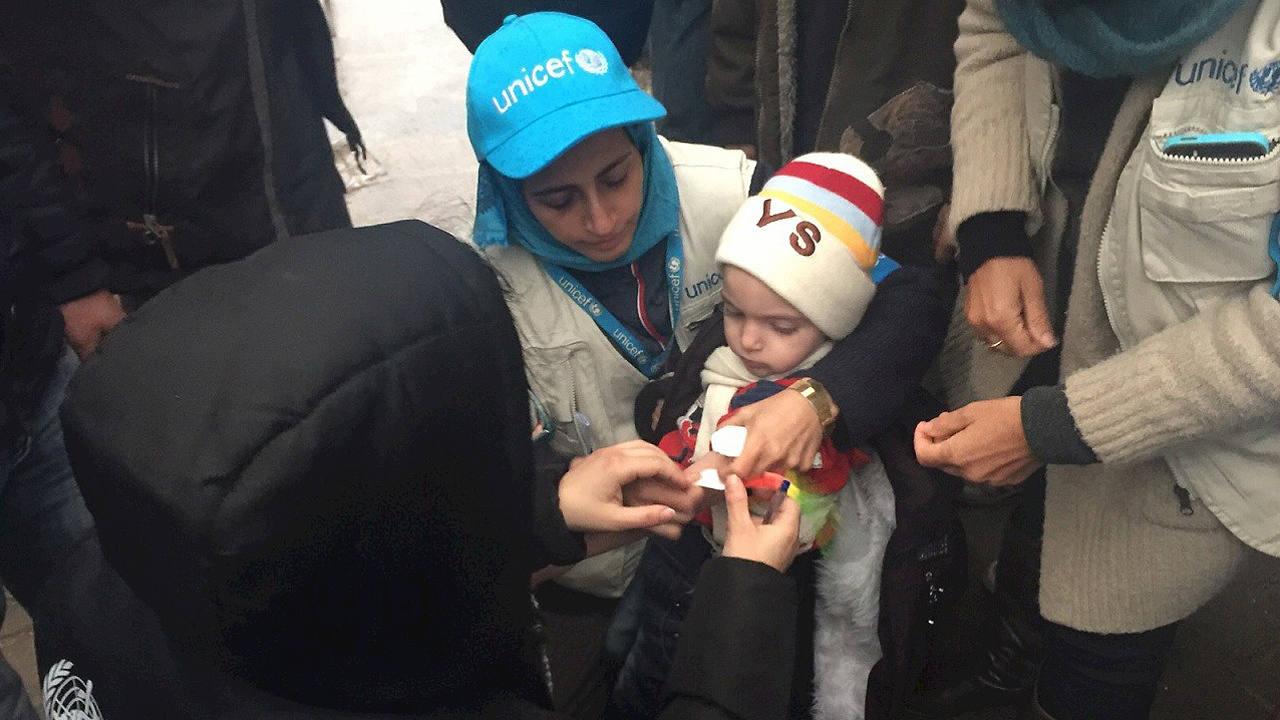 Fotografía facilitada por Unicef que muestra niños con problemas de nutrición en la ciudad siria de Madaya. AFP / UNICEF