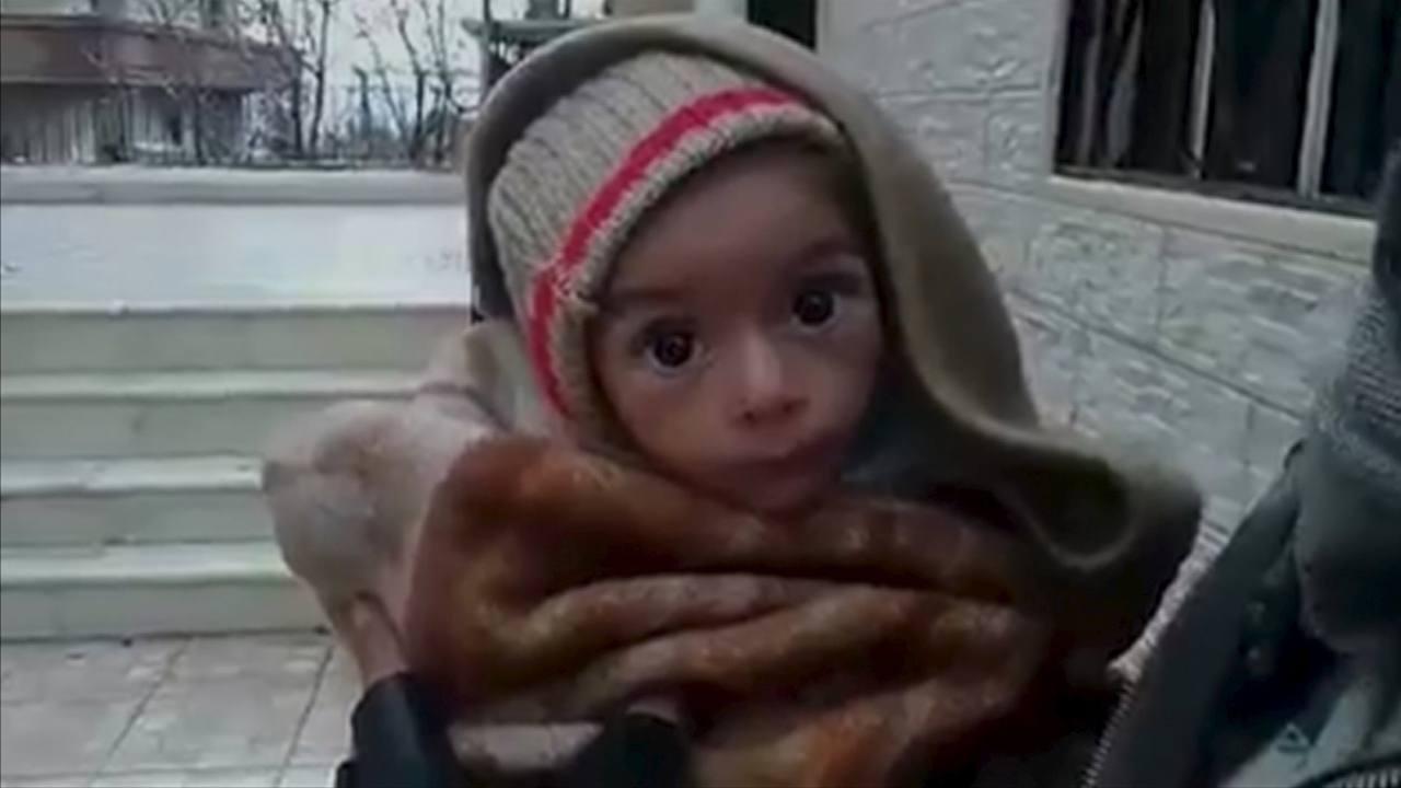 http://img.rtve.es/imagenes/fotograma-imagen-bebe-desnutrido-ciudad-siria-madaya/1452189447573.jpg