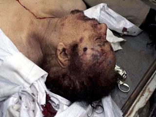 Gadafi, maltratado por los rebeldes antes de morir