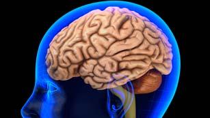 Saber vivir - Infartos, embolias y derrames cerebrales