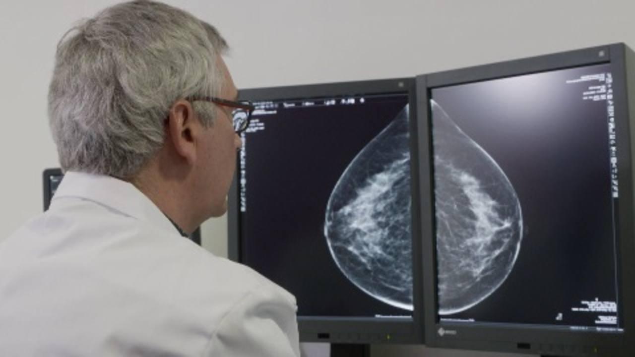 interpretar mamografia