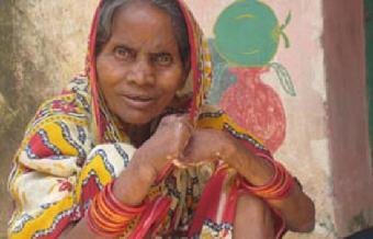 Pueblo de Dios - Lepra: del estigma a la esperanza