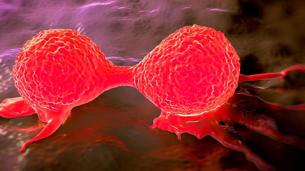 Llega a España una quimioterapia para el cáncer de mama que trata el interior de la célula