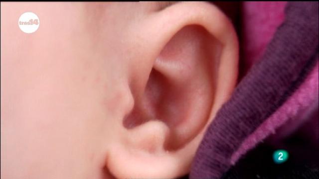 tres14 - Oído