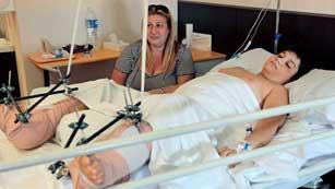 Pedro Cavadas consigue reimplantar a un niño de 10 años sus dos pies