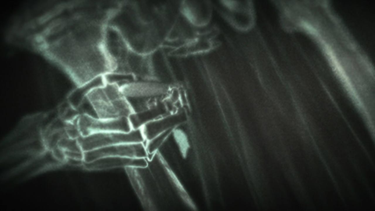La radiología permite extraer las balas de forma precisa