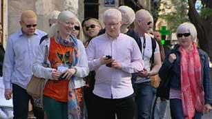 Valencia se convierte por unos días en la capital europea del albinismo