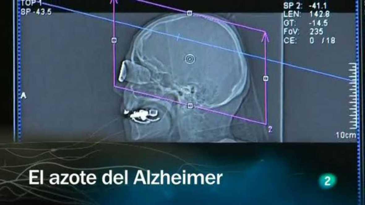 Redes - El azote del Alzheimer - Ver ahora
