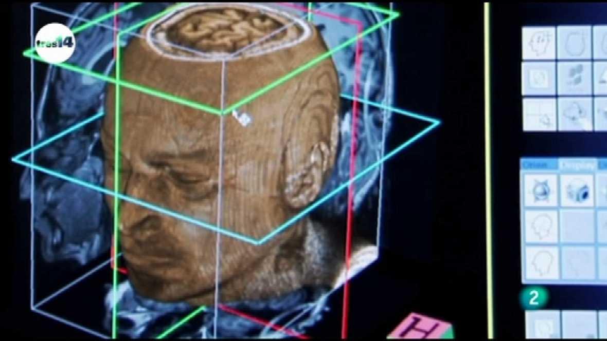 tres14 - Neurolenguaje - Ver ahora