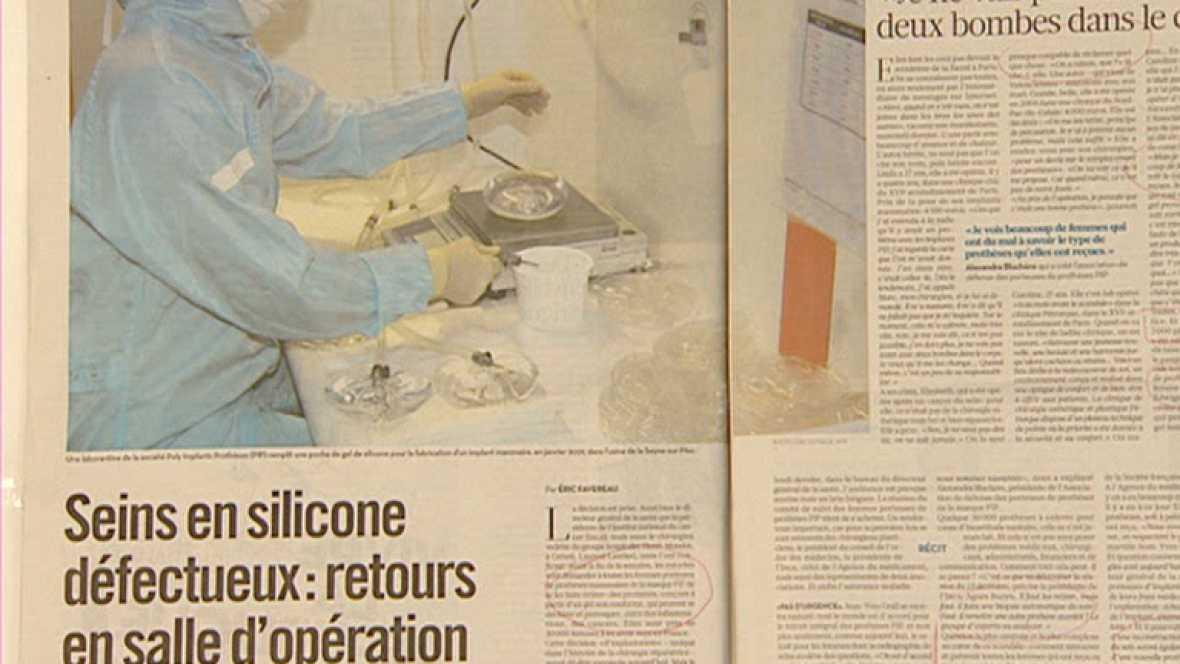 Regreso al quirófano de 30.000 mujeres con implantes mamarios en Francia