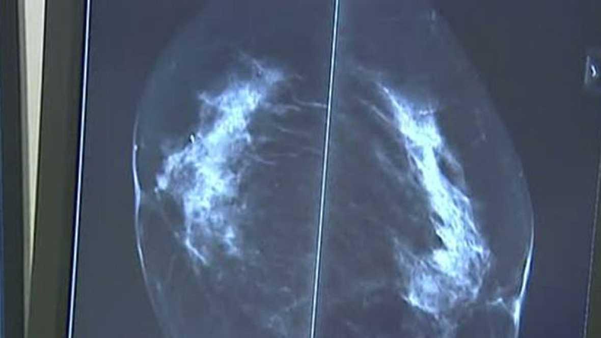 Cáncer de mama durante el embarazo, una dificultad añadida pero no fatal