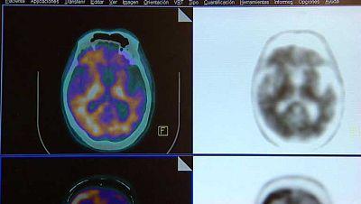 400 expertos buscan un diagnóstico precoz para el Alzheimer