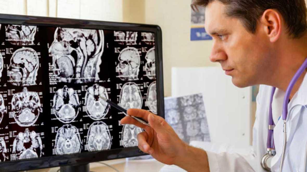 Radiografía para un cerebro sa