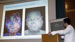 Éxito en el segundo trasplante de cara realizado en el Vall d'Hebron