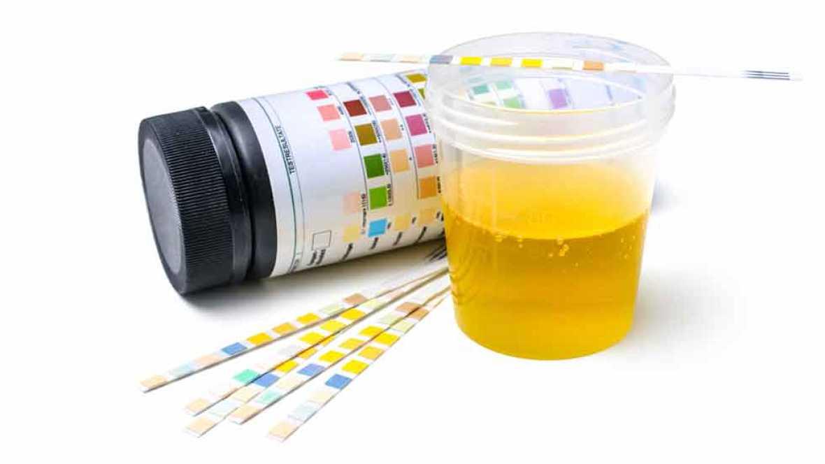 gota abre piedra recetas para pacientes con acido urico exame de sangue acido urico para que serve