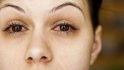 La salud de los ojos