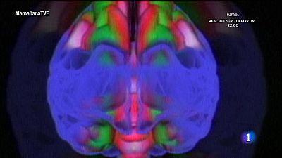Saber vivir - Migra�as y dolor de cabeza