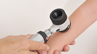 El número de lunares en el brazo derecho puede ser un indicador de riesgo de cáncer de piel, según un estudio